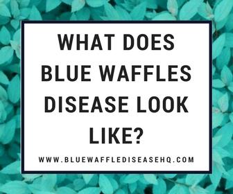 blue waffles pics