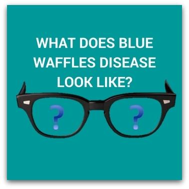 What Does Blue Waffles Disease Look Like